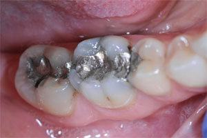 silver fillings before