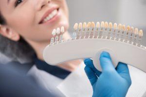 Dentist holding veneers
