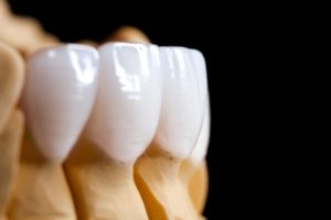 beautiful white porcelain veneers on jaw model